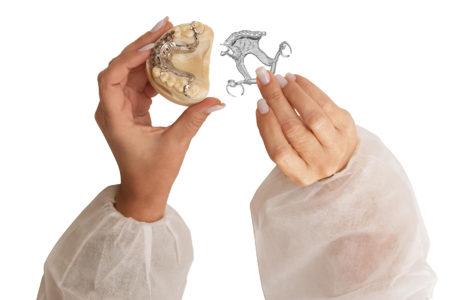 j5 dental 3d tlačiareň zubné náhrady implantáty